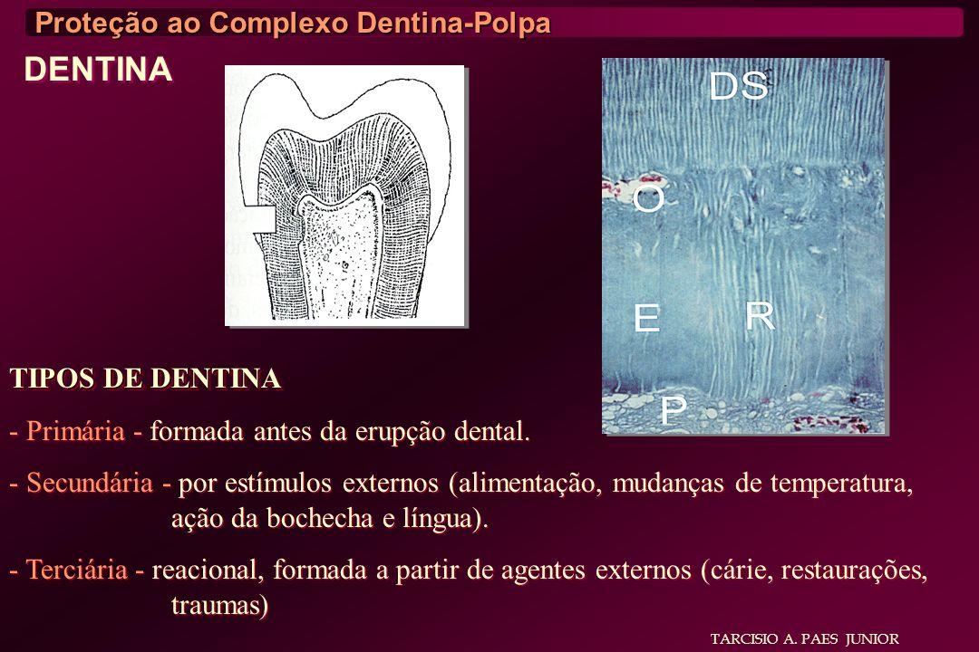 DENTINA Proteção ao Complexo Dentina-Polpa TIPOS DE DENTINA