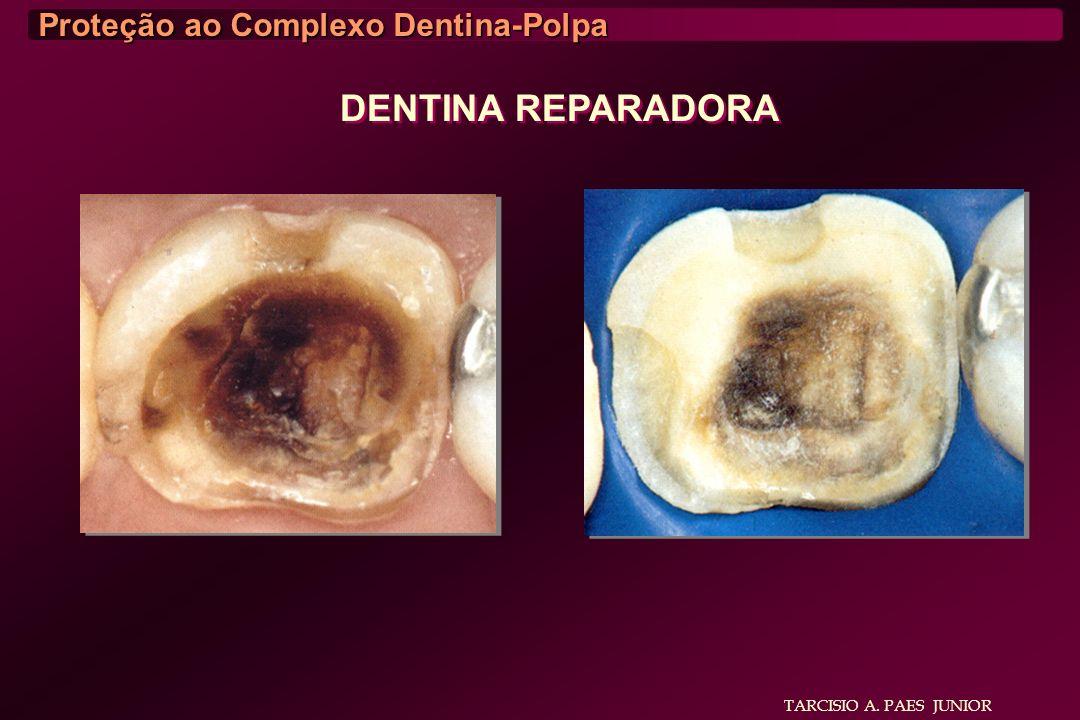 DENTINA REPARADORA Proteção ao Complexo Dentina-Polpa