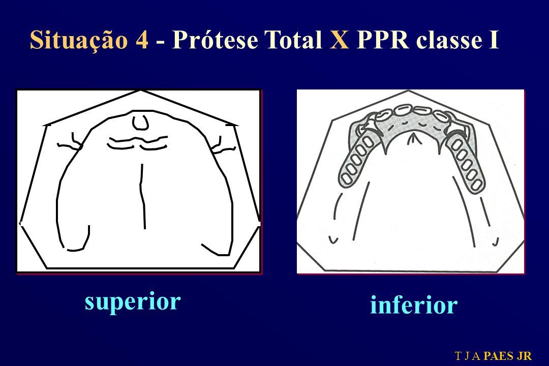 Situação 4 - Prótese Total X PPR classe I