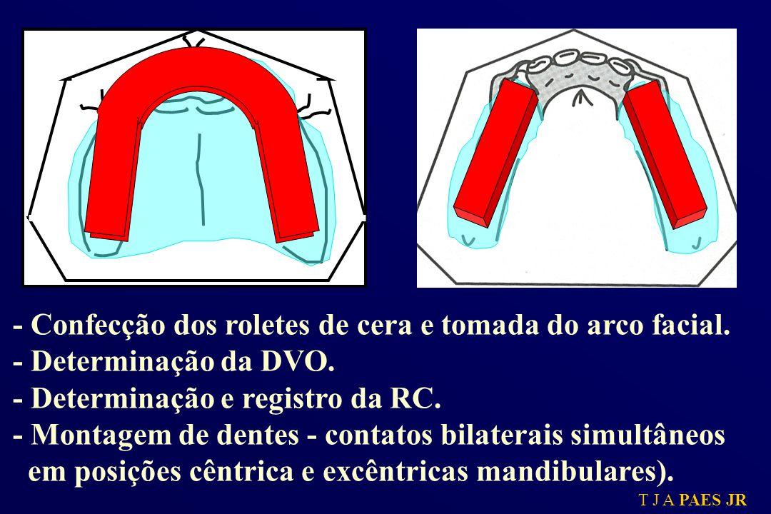- Confecção dos roletes de cera e tomada do arco facial.