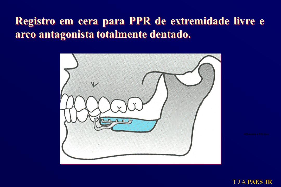 Registro em cera para PPR de extremidade livre e arco antagonista totalmente dentado.
