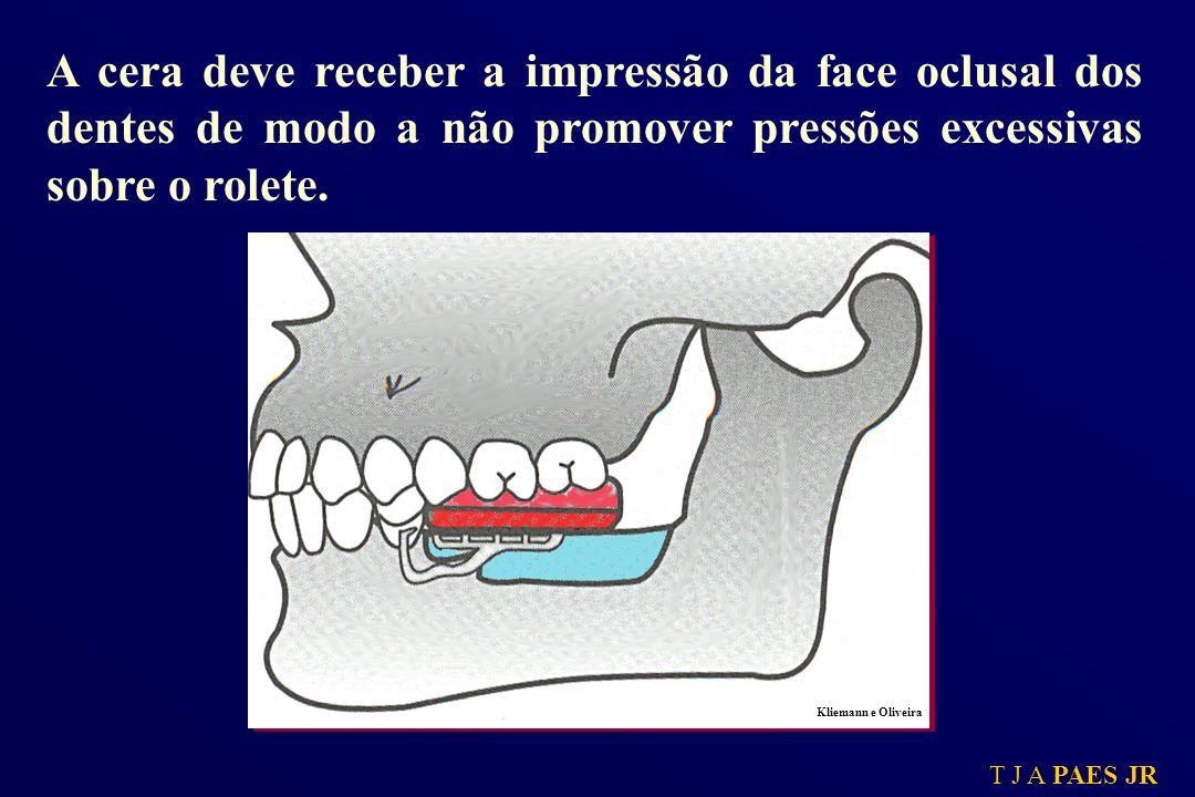 A cera deve receber a impressão da face oclusal dos dentes de modo a não promover pressões excessivas sobre o rolete.