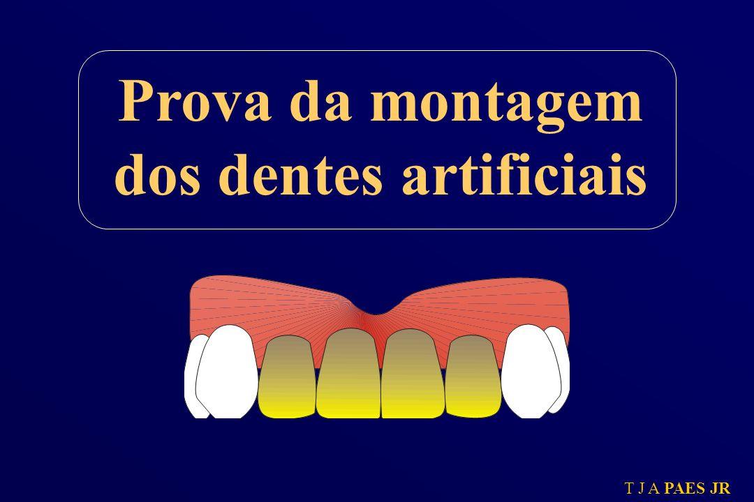 Prova da montagem dos dentes artificiais