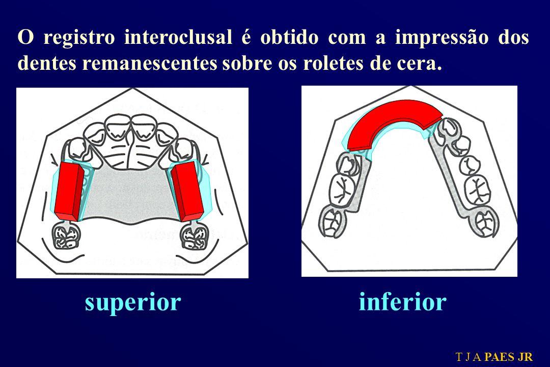 O registro interoclusal é obtido com a impressão dos dentes remanescentes sobre os roletes de cera.