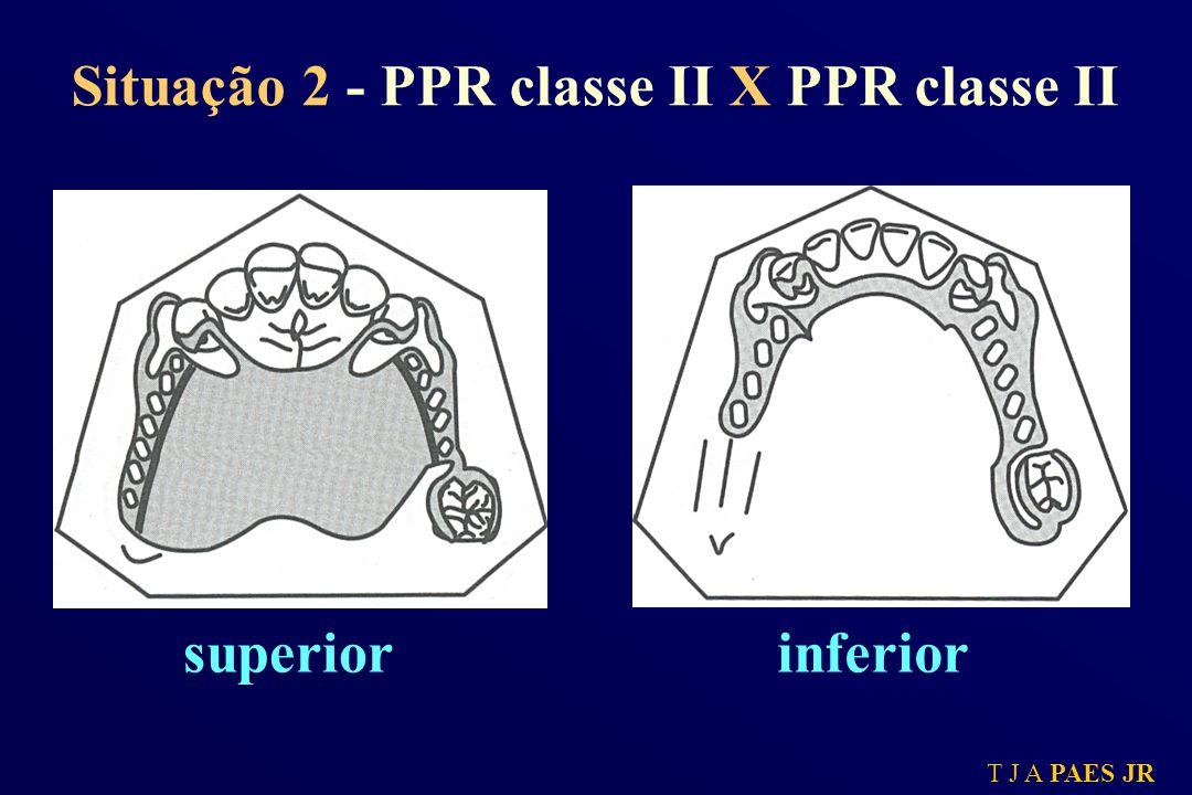 Situação 2 - PPR classe II X PPR classe II