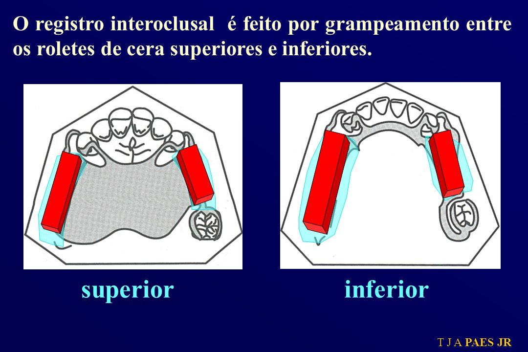 O registro interoclusal é feito por grampeamento entre os roletes de cera superiores e inferiores.