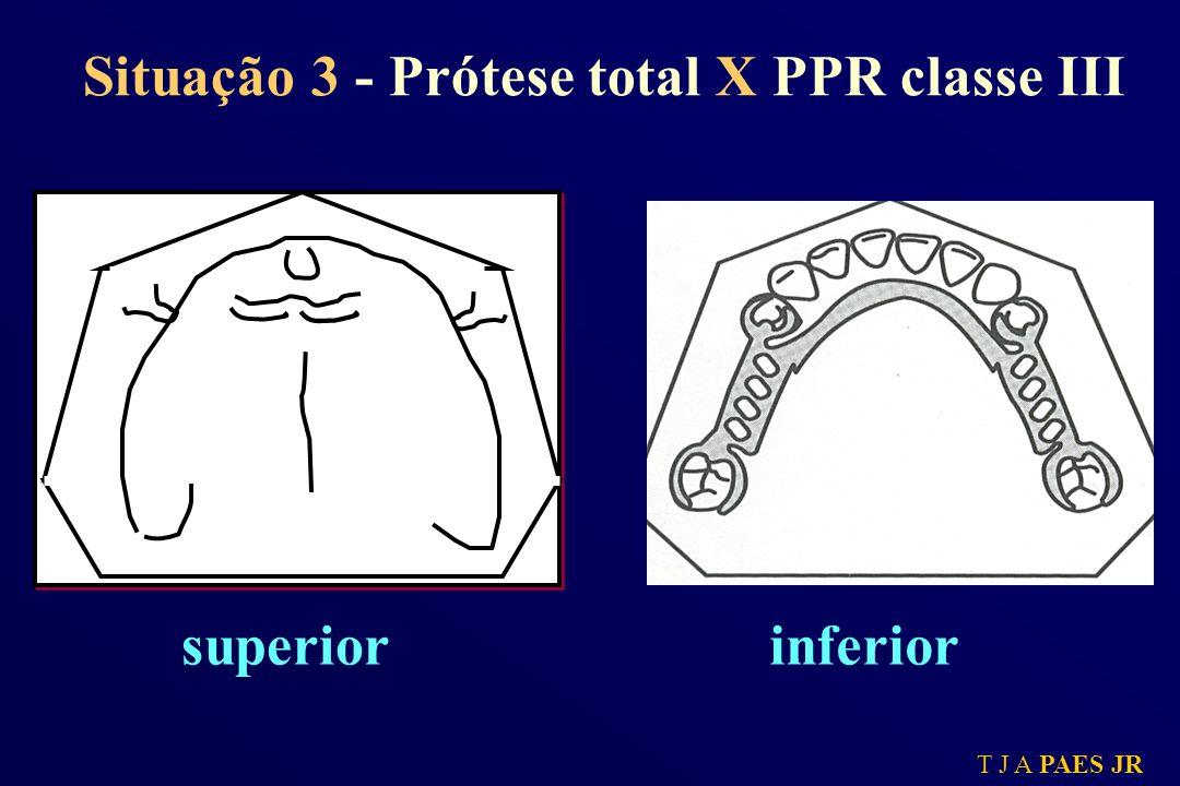 Situação 3 - Prótese total X PPR classe III