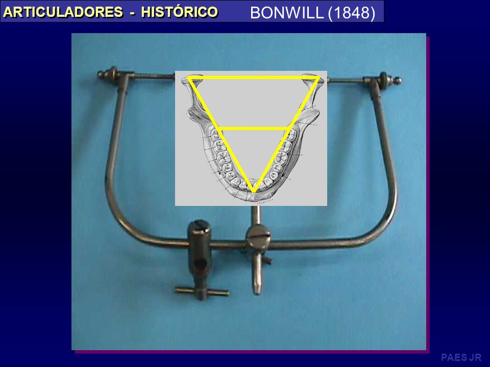 BONWILL (1848) ARTICULADORES - HISTÓRICO