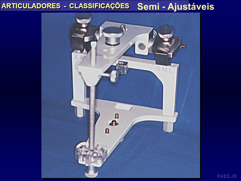Semi - Ajustáveis Semi - Ajustáveis ARTICULADORES - CLASSIFICAÇÕES