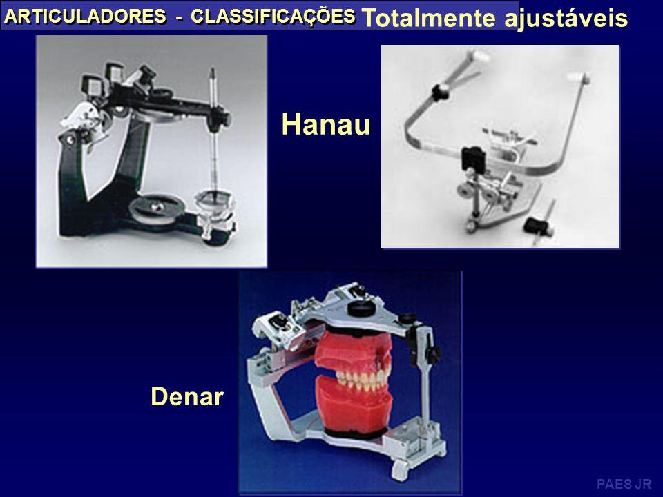 Hanau Totalmente ajustáveis Denar ARTICULADORES - CLASSIFICAÇÕES