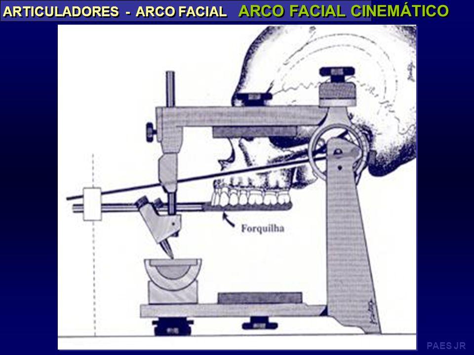 ARCO FACIAL CINEMÁTICO