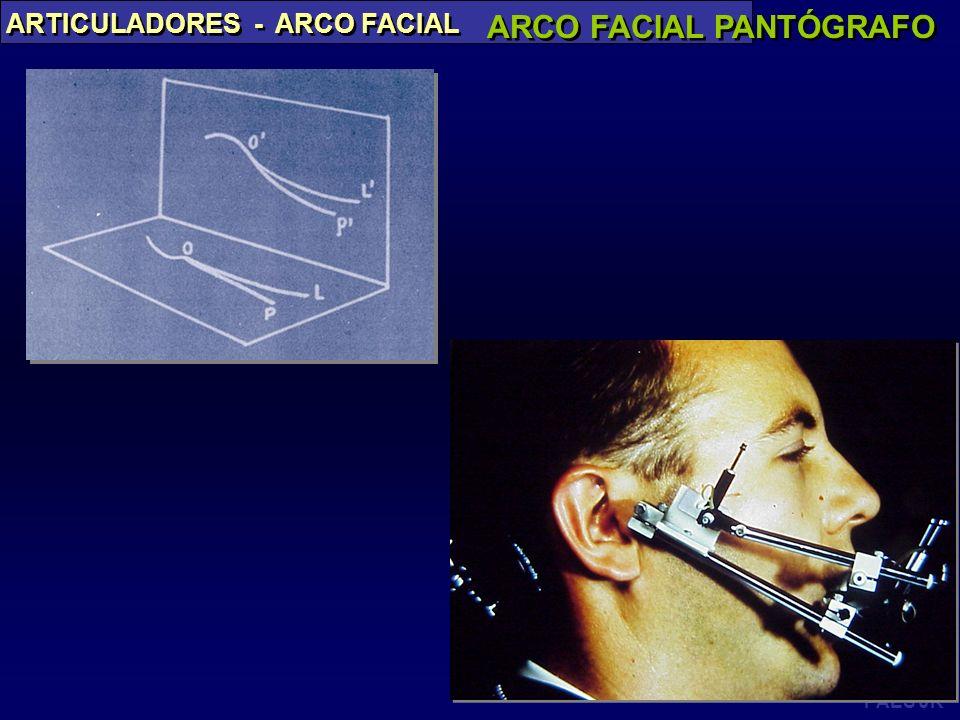 ARCO FACIAL PANTÓGRAFO