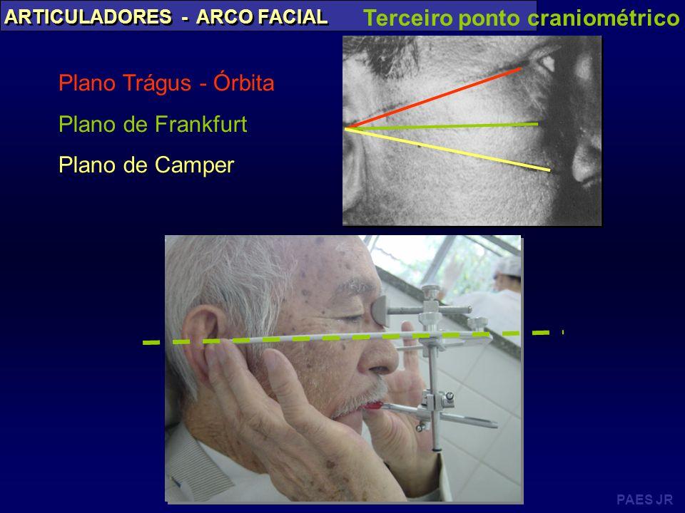 Terceiro ponto craniométrico