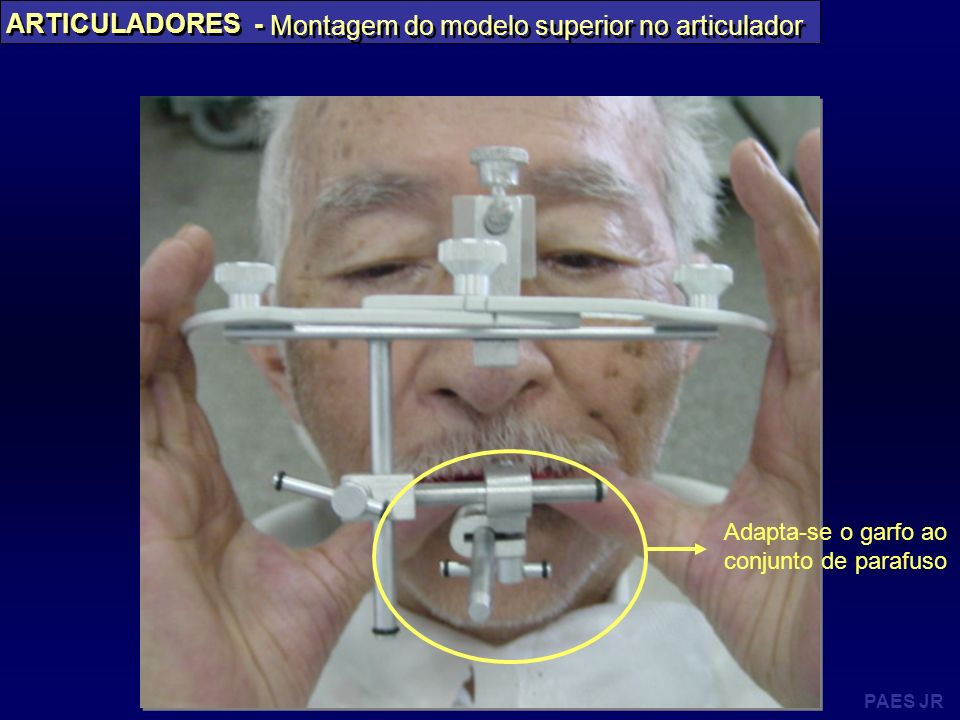 Montagem do modelo superior no articulador