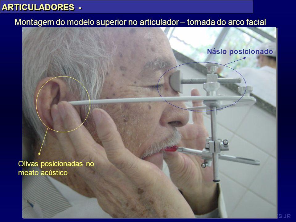 Montagem do modelo superior no articulador – tomada do arco facial