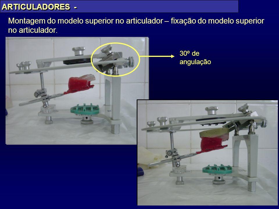 ARTICULADORES - Montagem do modelo superior no articulador – fixação do modelo superior no articulador.