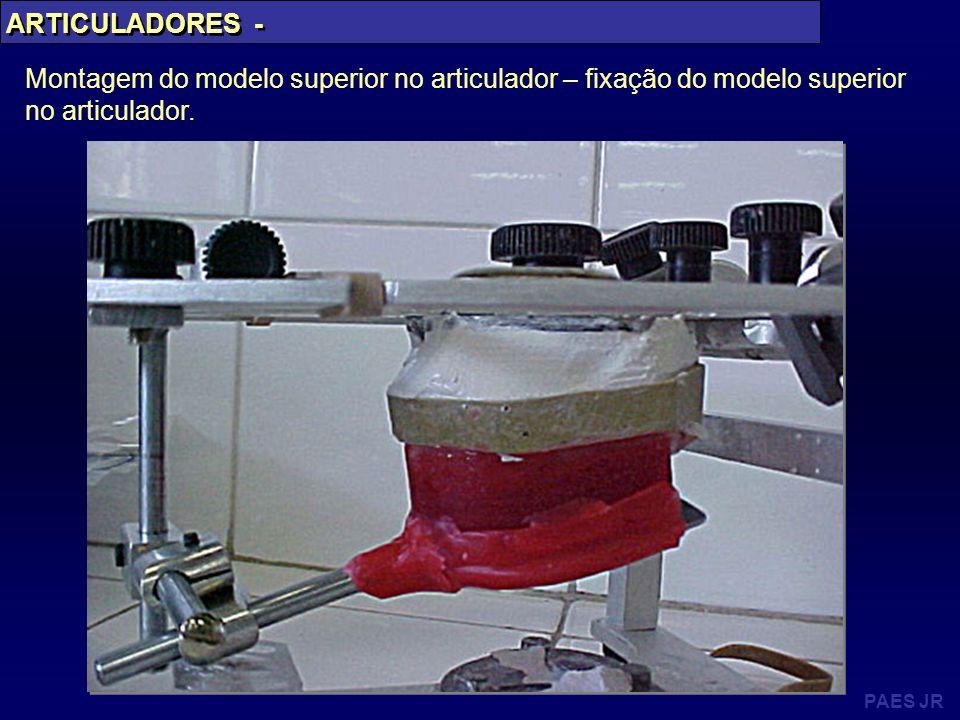 ARTICULADORES -Montagem do modelo superior no articulador – fixação do modelo superior no articulador.