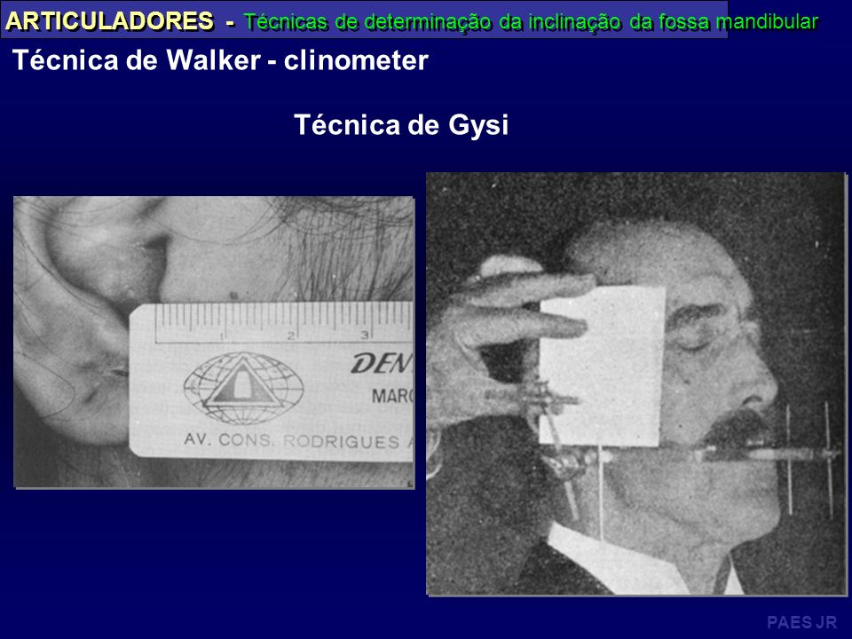 Técnica de Walker - clinometer