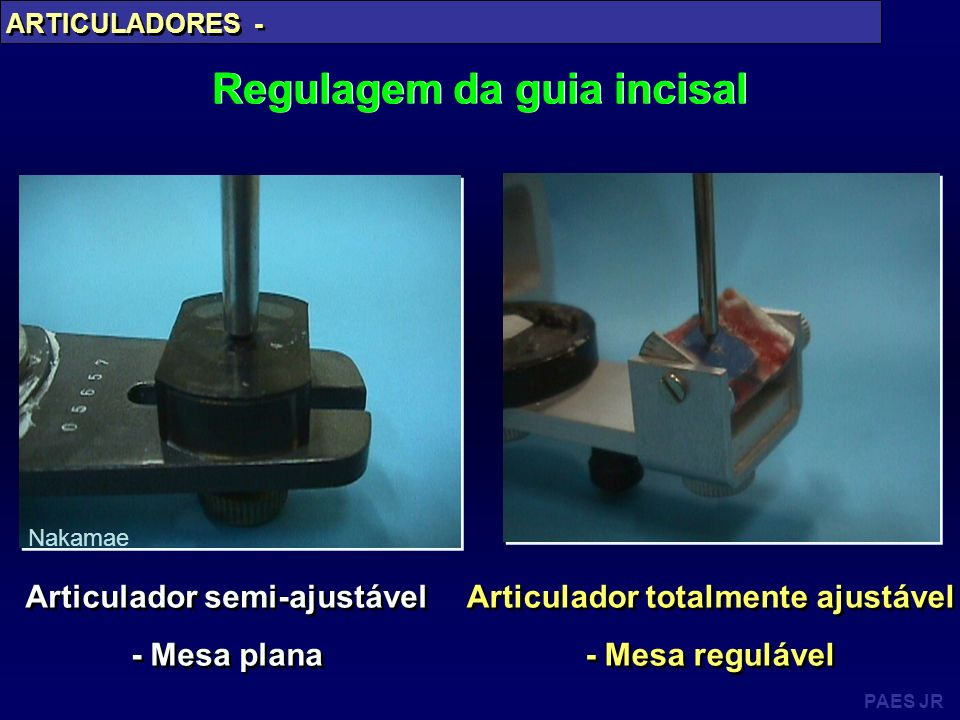 Regulagem da guia incisal