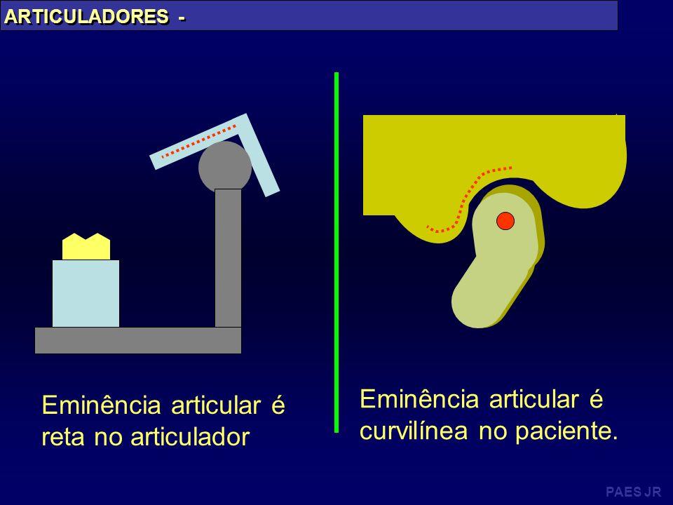 Eminência articular é curvilínea no paciente.