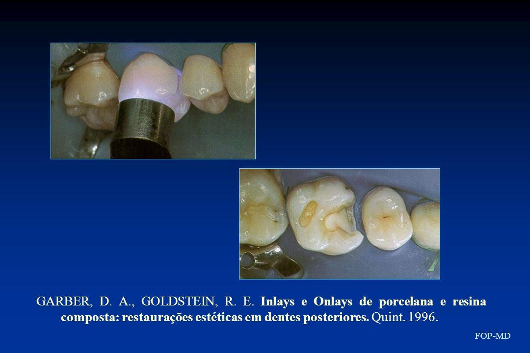 GARBER, D. A., GOLDSTEIN, R. E. Inlays e Onlays de porcelana e resina composta: restaurações estéticas em dentes posteriores. Quint. 1996.