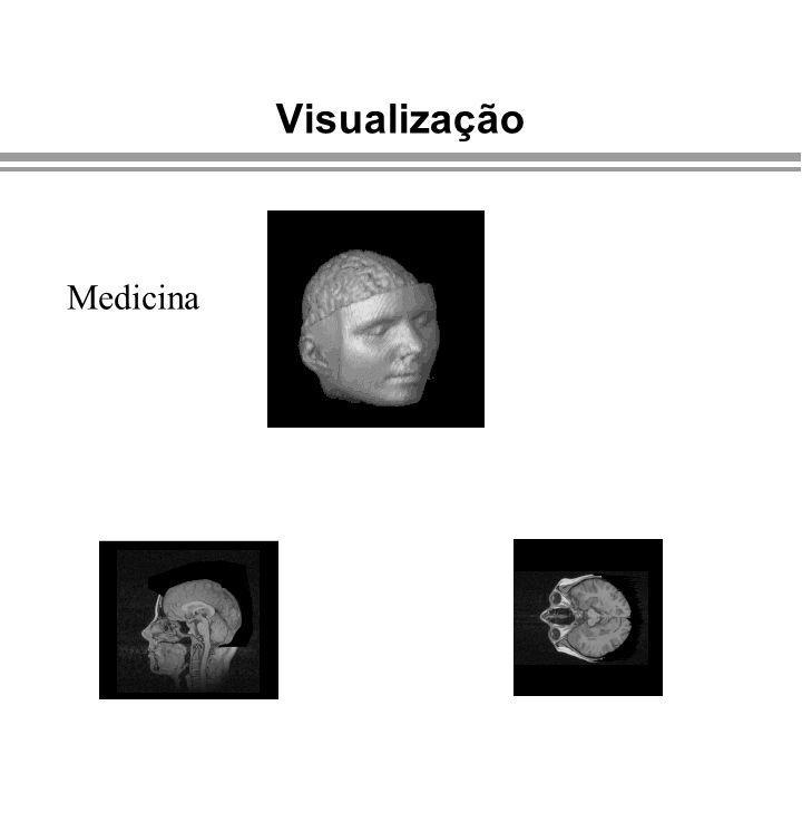 Apresentação Visualização Medicina Computação Gráfica - Gattass