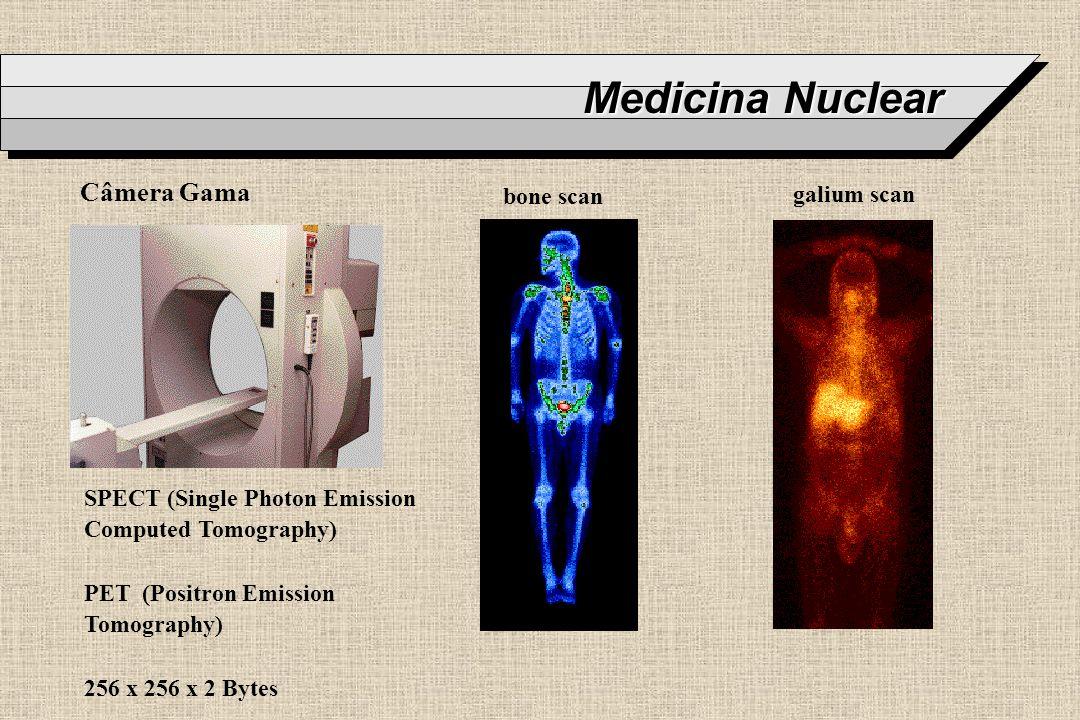 Medicina Nuclear Câmera Gama bone scan galium scan