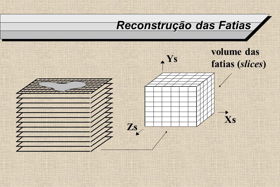 Reconstrução das Fatias