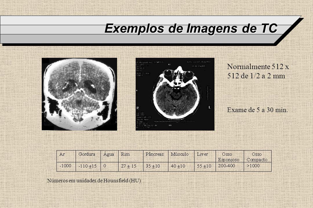 Exemplos de Imagens de TC
