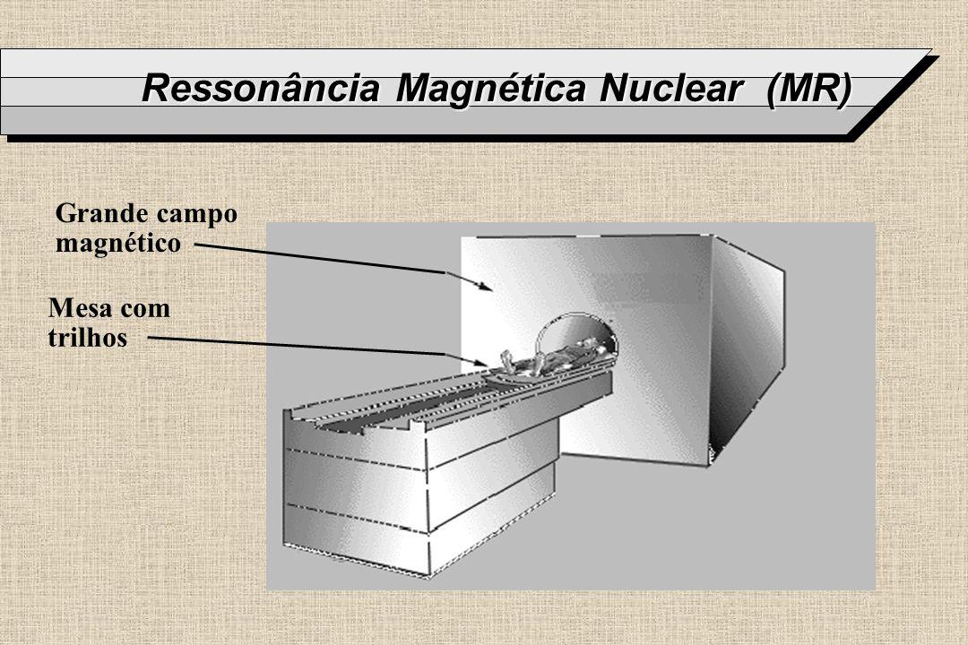 Ressonância Magnética Nuclear (MR)