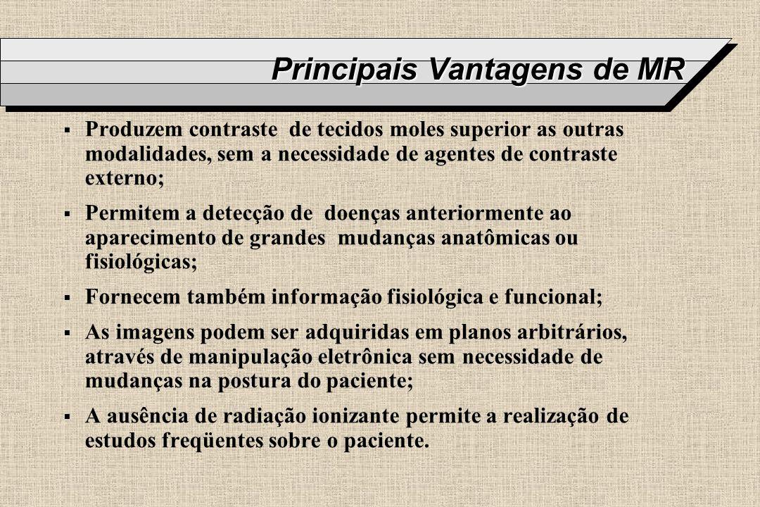 Principais Vantagens de MR