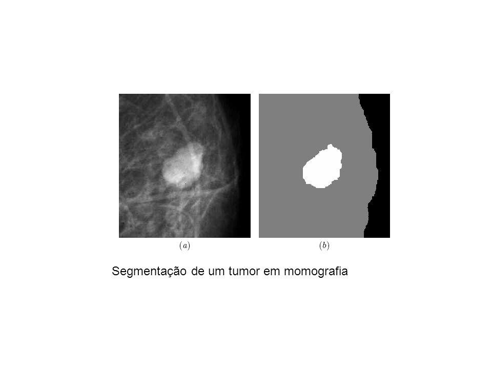 Segmentação de um tumor em momografia