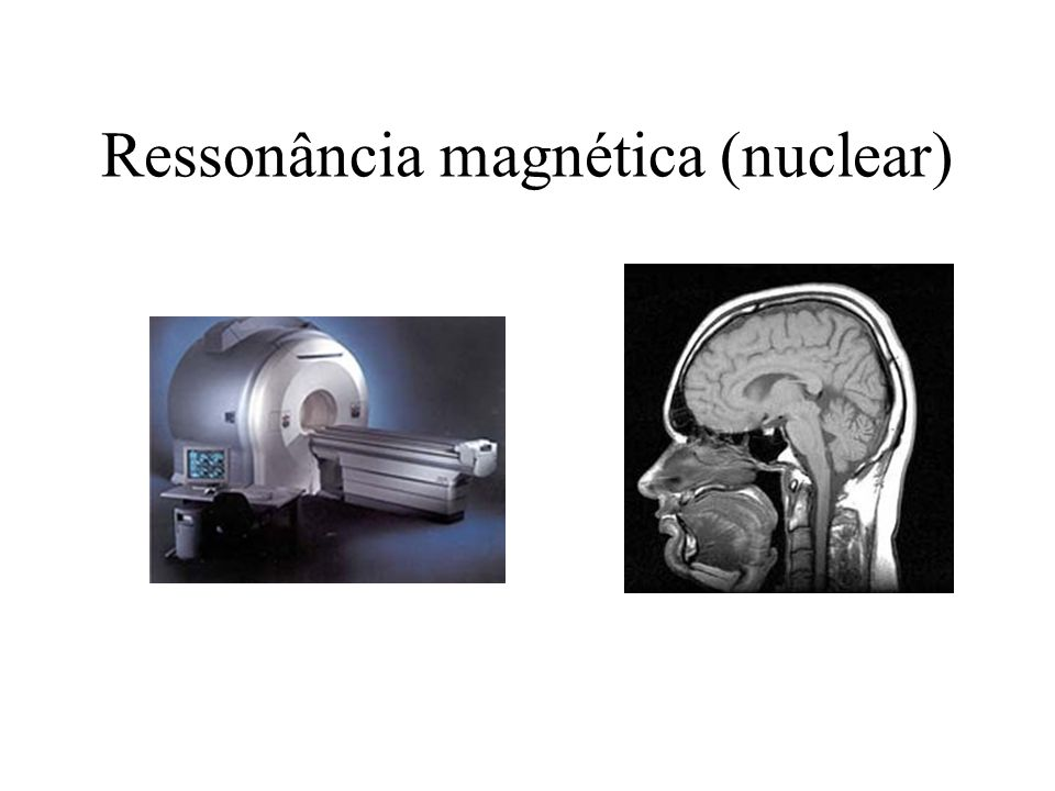 Ressonância magnética (nuclear)