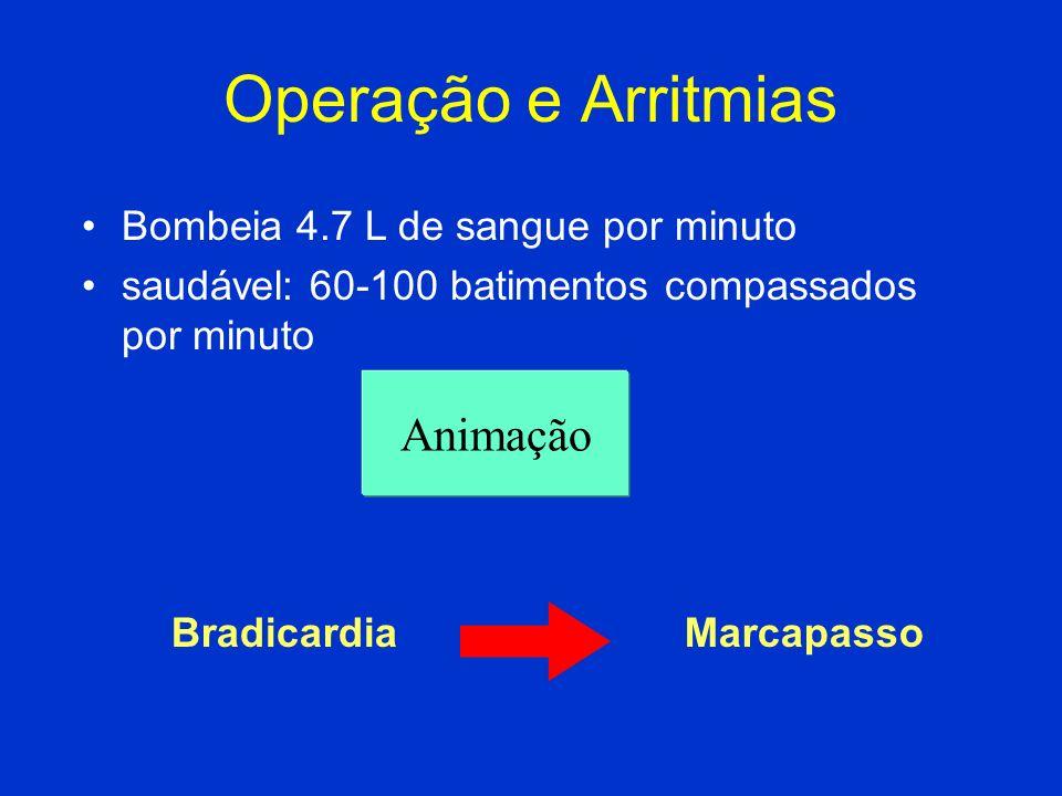 Operação e Arritmias Animação Bombeia 4.7 L de sangue por minuto