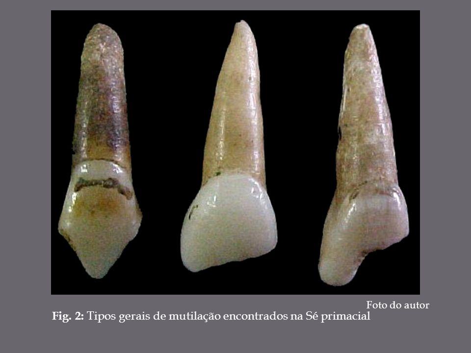 Fig. 2: Tipos gerais de mutilação encontrados na Sé primacial