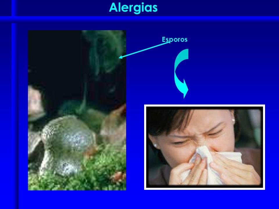 Alergias Esporos
