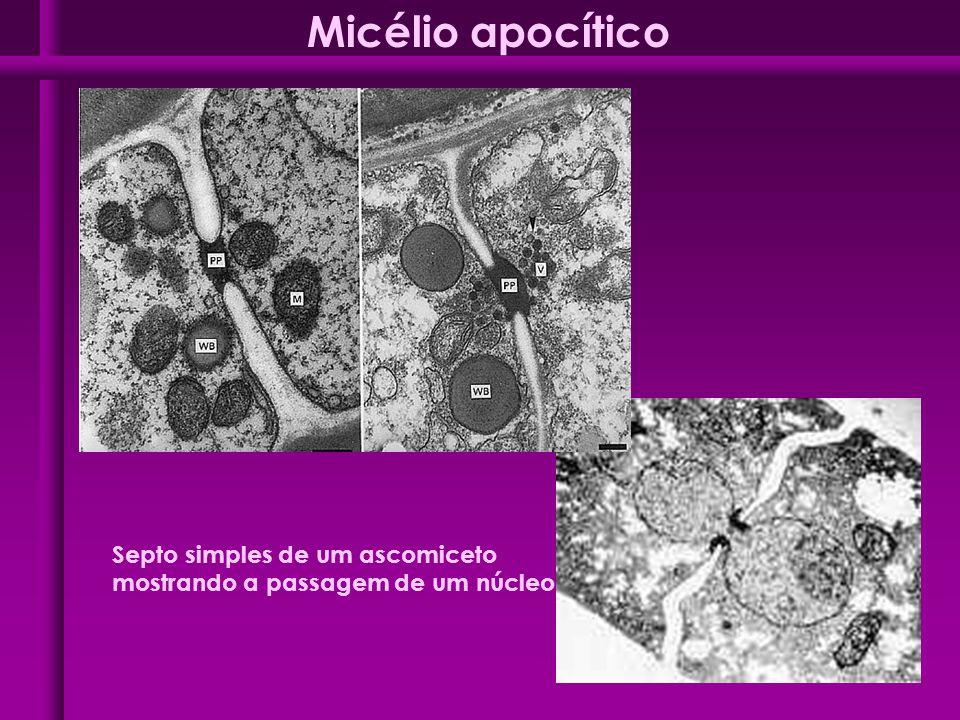 Micélio apocítico Septo simples de um ascomiceto