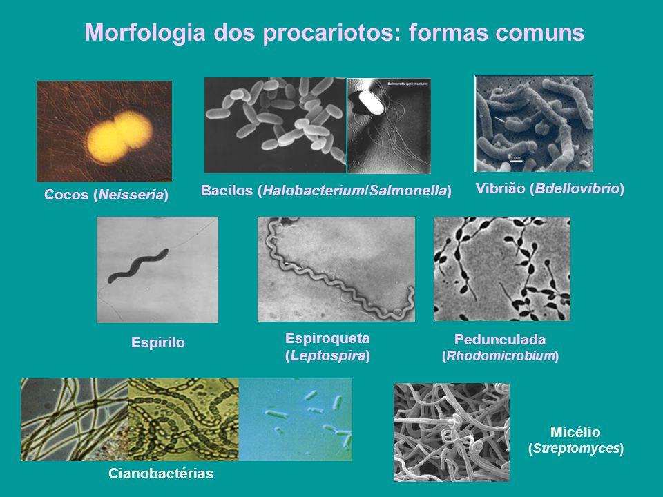Morfologia dos procariotos: formas comuns
