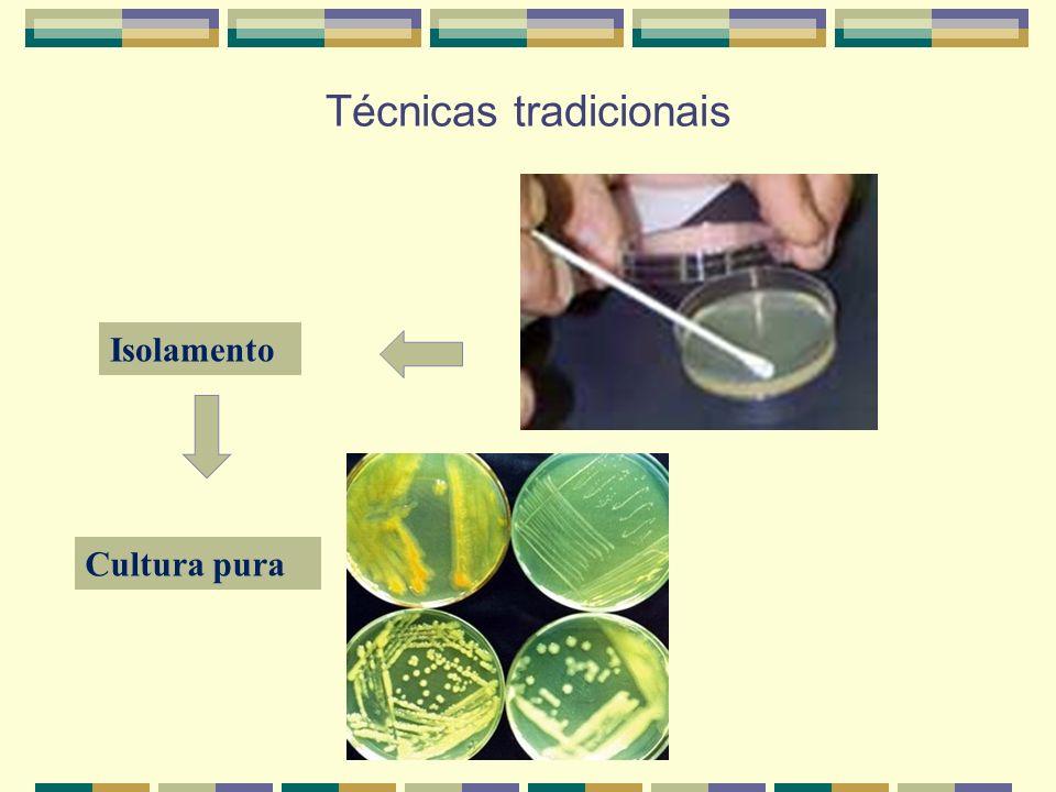 Técnicas tradicionais