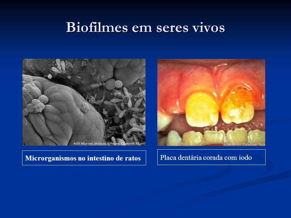 Biofilmes em seres vivos
