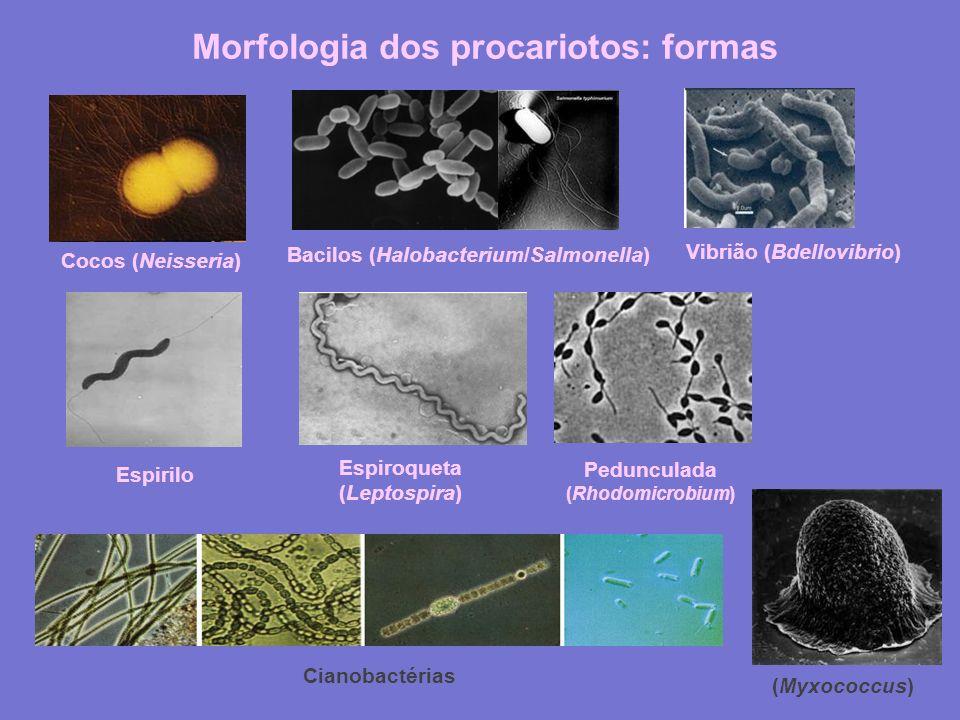 Morfologia dos procariotos: formas Espiroqueta (Leptospira)