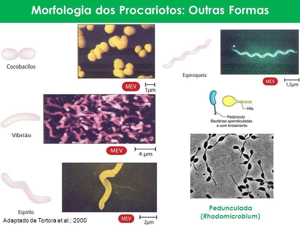 Morfologia dos Procariotos: Outras Formas