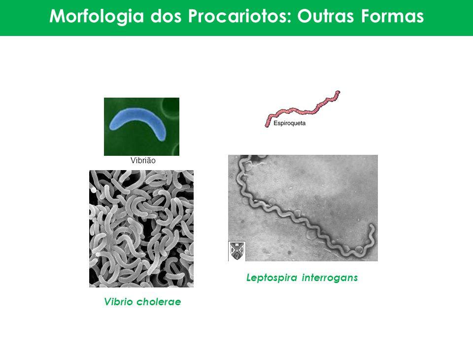 Morfologia dos Procariotos: Outras Formas Leptospira interrogans