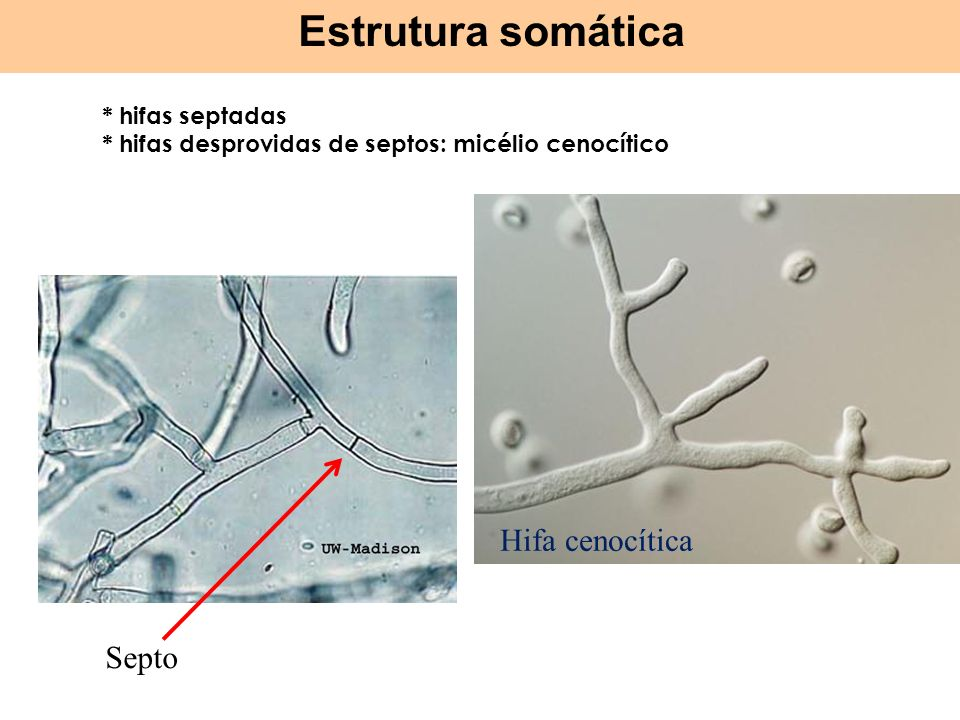 Estrutura somática Hifa cenocítica Septo * hifas septadas