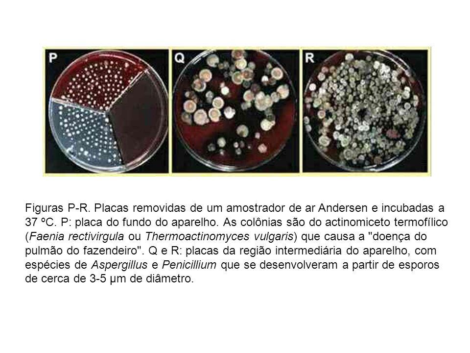 Figuras P-R. Placas removidas de um amostrador de ar Andersen e incubadas a