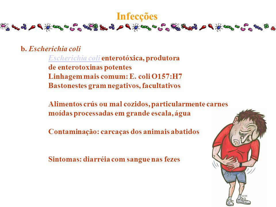 Infecções b. Escherichia coli Escherichia coli enterotóxica, produtora