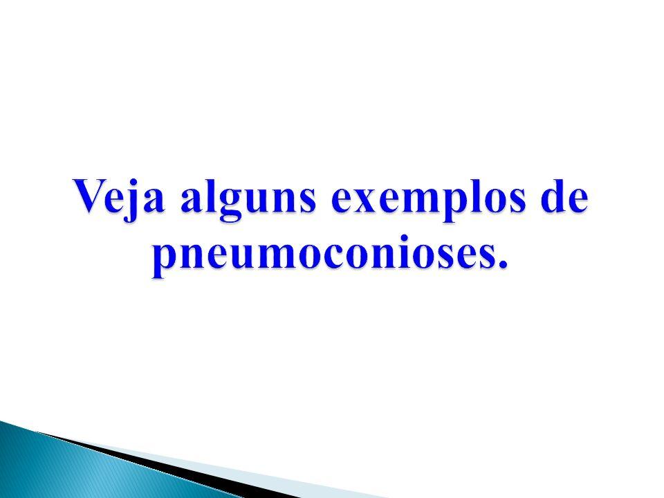 Veja alguns exemplos de pneumoconioses.