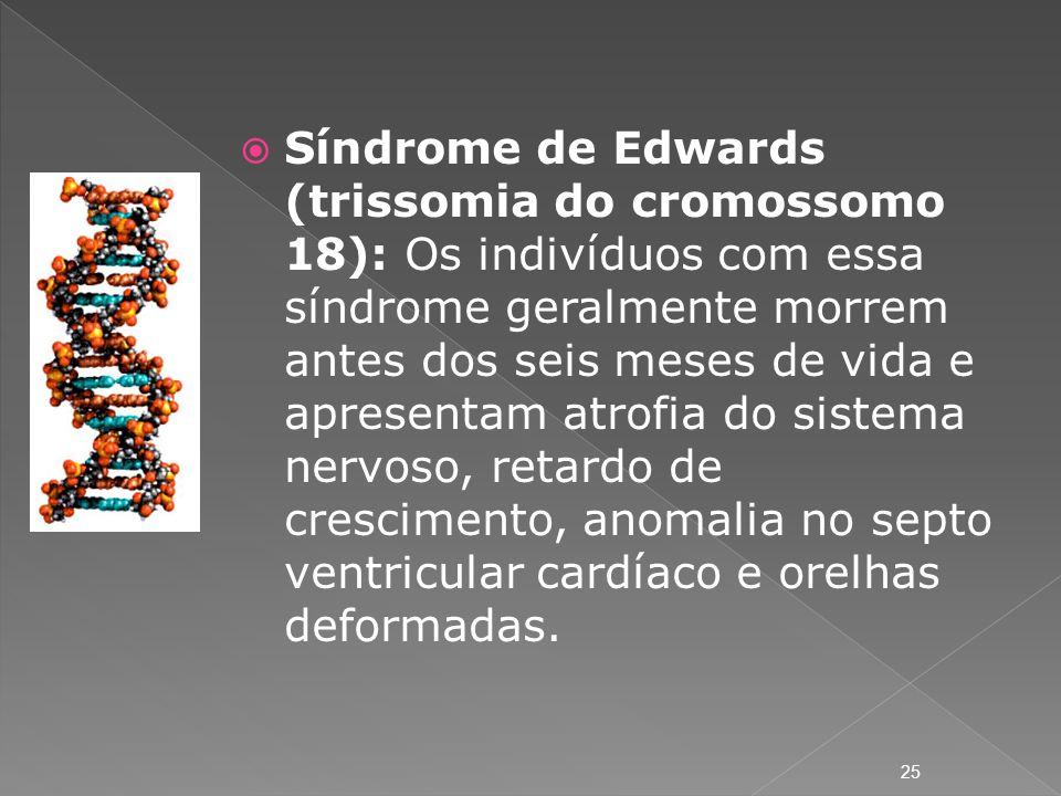 Síndrome de Edwards (trissomia do cromossomo 18): Os indivíduos com essa síndrome geralmente morrem antes dos seis meses de vida e apresentam atrofia do sistema nervoso, retardo de crescimento, anomalia no septo ventricular cardíaco e orelhas deformadas.