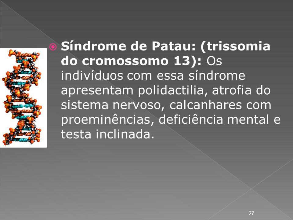 Síndrome de Patau: (trissomia do cromossomo 13): Os indivíduos com essa síndrome apresentam polidactilia, atrofia do sistema nervoso, calcanhares com proeminências, deficiência mental e testa inclinada.