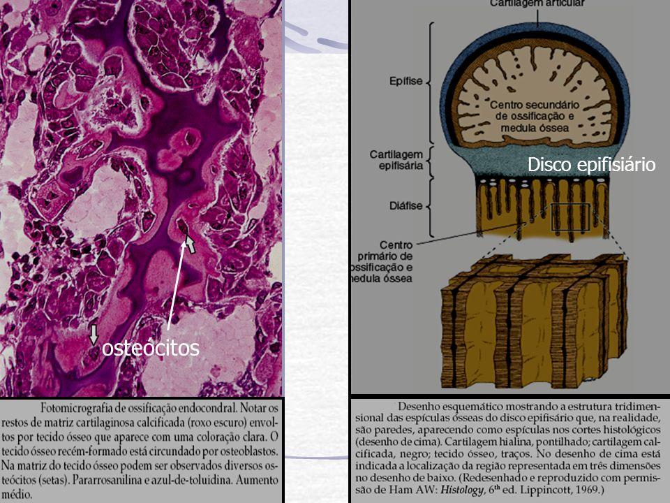 Disco epifisiário osteócitos